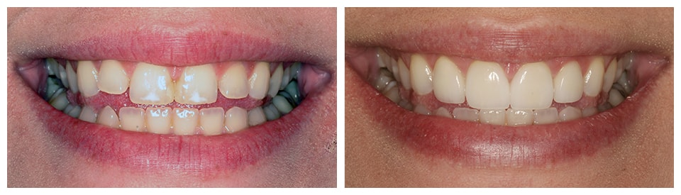An actual case study of our Cosmetic Dentist in Hemet.