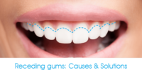 Smile with receding gums causes and solutions