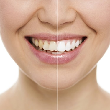 A close up of a smile before and after Zoom! Teeth Whitening which is offered as part of our Hemet dental services.
